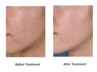face peels before and after