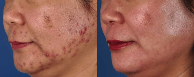 Acne- before and after